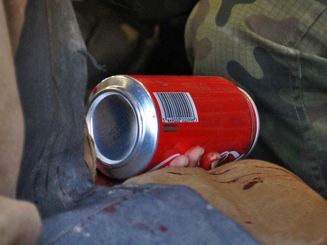 W Polsce trafiające na pogotowie dziecko dostaje zwykle jakąś maskotkę – coś, co zajmie jego uwagę, odciągnie od skaleczenia i bólu. Co w jakiejś mierze zrekompensuje stratę. Sześcioletni Muhammad dostał puszkę coca-coli. Była zimna i tak samo czerwona, jak krew na palcach malca.